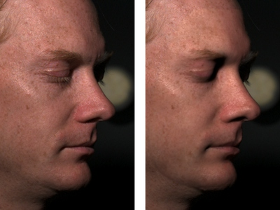 Analysis Of Human Faces Using A Measurement Based Skin